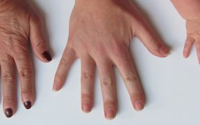 8 Warning Health Signs From Your Finger Nails