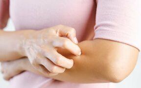 Understanding Pruritus/Itchy Skin