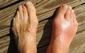 High Uric Acid And Gout